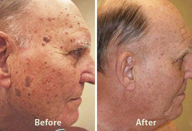 Benign Lesions Removal and Treatment in Birmingham, AL