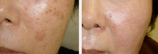 Brown Spot Treatments with Laser Dermatology Technology
