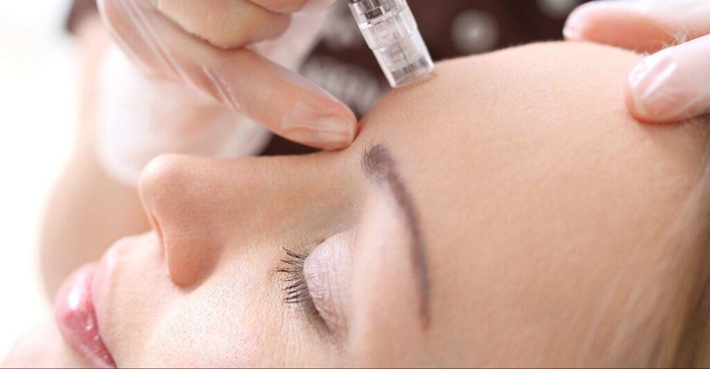 Microneedling Treatments | Non Invasive Cosmetic Surgery Birmingham