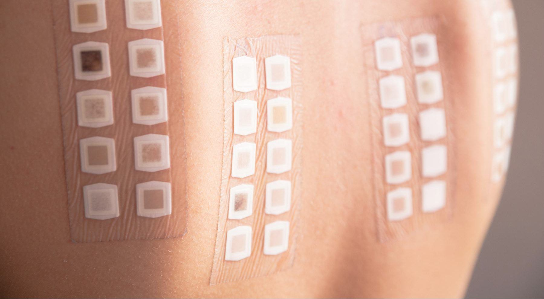 Patch Testing Cahaba Dermatology
