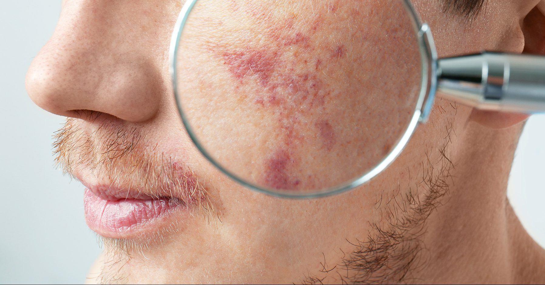 Vbeam Laser Treatment For Treating Redness Rosacea Birmingham
