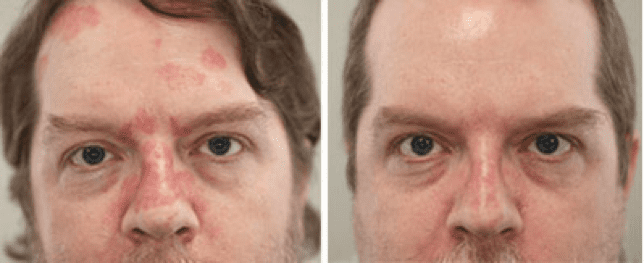 Before and after pictures of a man treated for Eczema & Psoriasis.